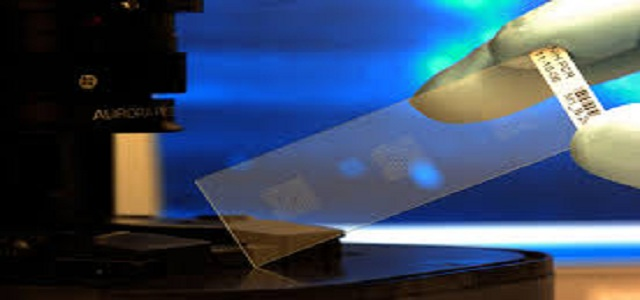 Global Biochips Market size is projected to witness significant growth from 2017 to 2024