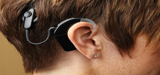 Cochlear Implant Systems Market: Industry Trends & Business Opportunities by 2024