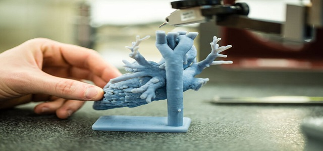Healthcare 3D Printing Market Analysis, Industry Trends & Business Outlook