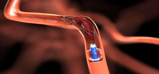 Neurovascular Devices Market Analysis, Industry Outlook, Forecast Report 2024